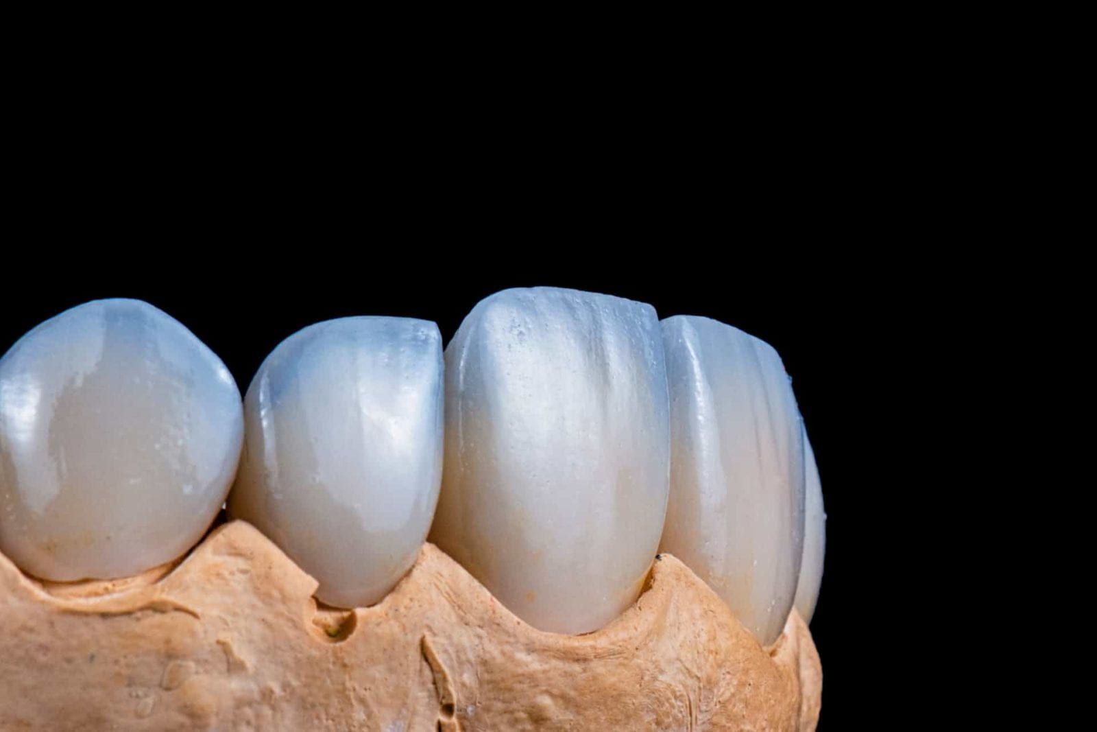 porcelain veneers on black isolated background with dental mold