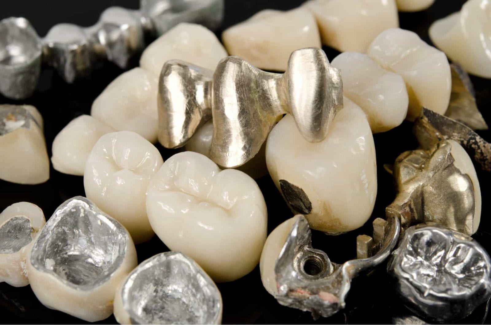 a bundle of alloys in a dental lab