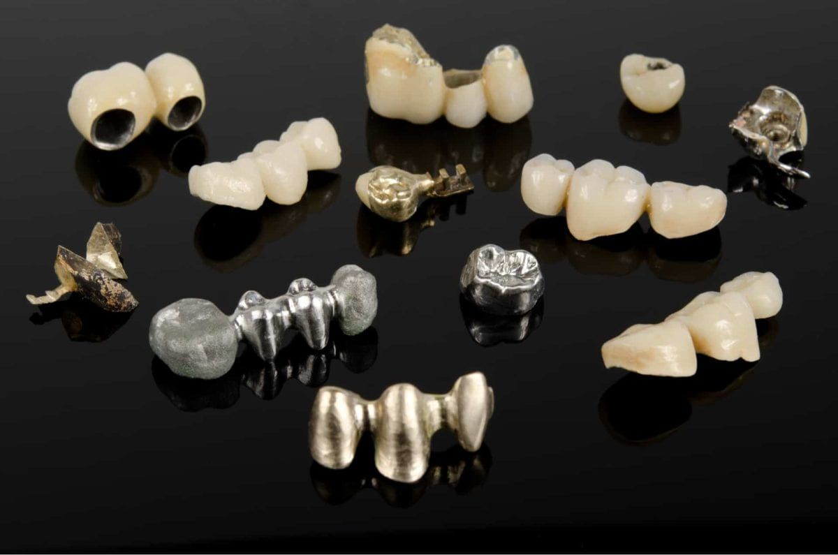 an assortment of alloys and dental ceramics