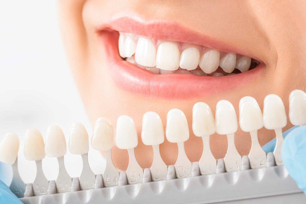 woman matching custom veneer shades to her teeth
