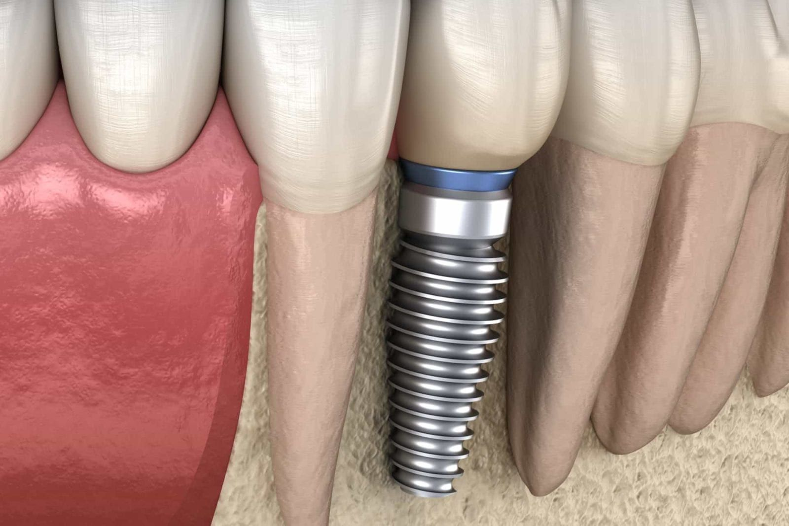 dental implant, 3d graphic