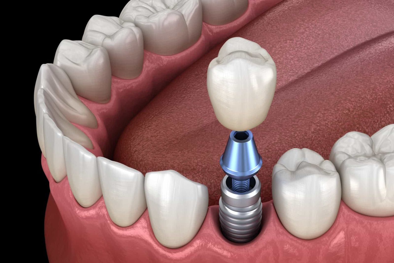 dental implant being inserted into 3d graphic model