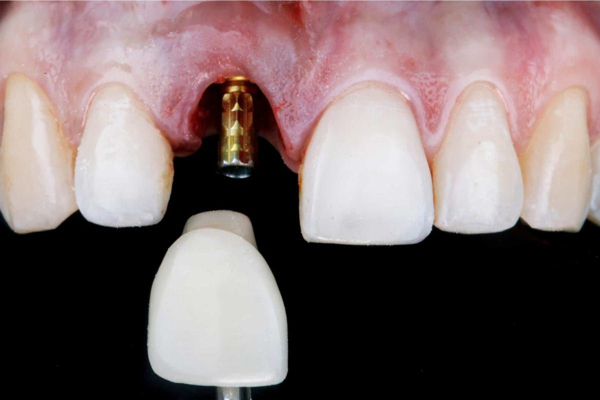 dental implant being inserted